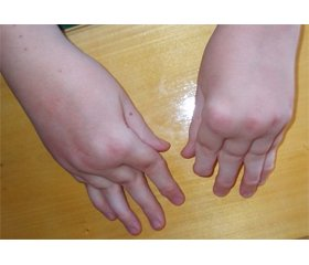 Evaluation of Manifestations of Juvenile Rheumatoid Arthritis and Its Outcomes in Long-Term Follow-Up (5–10–15 Years)