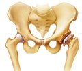 Hip osteoarthritis. Technical means of diagnosis. Analytical review of the literature. Part II