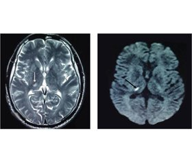 Clinical syndromes of thalamic strokes in posterolateral vascular territory: a prospective hospital-based cohort study