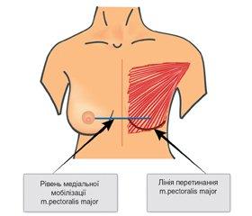 Ацелюлярний дермальний матрикс в реконструктивній хірургії молочної залози. Перший досвід в Україні