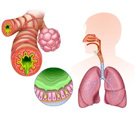 Glucocorticoids in the treatment of acute respiratory distress syndrome: pros and cons. Literature review