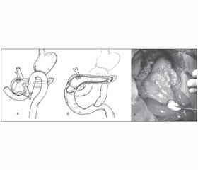 Нарушения дуоденальной проходимости при хроническом панкреатите