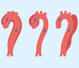 Гостре розшарування аорти: діагностика, лікування та прогноз