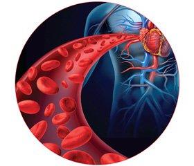 Сучасні уявлення про механізми ураження судин при гіпертонічній хворобі та атеросклерозі