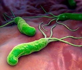 Клинические рекомендации Американской гастроэнтерологической ассоциации по лечению инфекции Helicobacter pylori