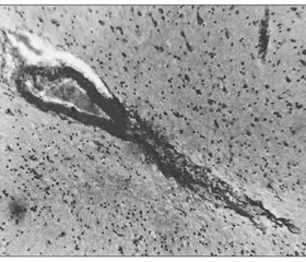 Increase in the adaptive potential of the central nervous system in traumatic brain injury
