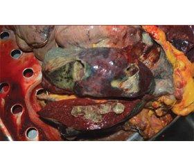 Потрійний паразитизм (гельмінтоз, асоціація мікроорганізмів, злоякісні пухлини)