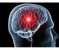 Оптимизация алгоритма интенсивной терапии у пациентов с ишемическим инсультом