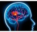 Оцінка активності симпатоадреналової системи у хворих у гострому періоді інфаркту головного мозку