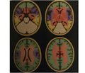 Chronic cerebral venous congestion in somatoneurology: diagnostic and treatment aspects