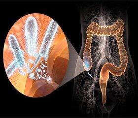 Мікробіоценоз кишечника за умов експериментального гіпотиреозу