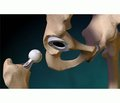 Двохетапне ревізійне ендопротезування кульшового суглоба із застосуванням прес-форм для інтраопераційного виготовлення спейсерів