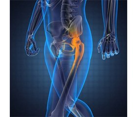 Allelic Polymorphism of FDPS Gene inPrognosis of Osteoporosis in Young Patients with Osteoarthritis