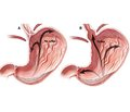Stages of diagnosis of pathological gastroesophageal reflux in children