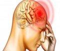 Особливості клінічного перебігу больових синдромів ухворих намозковий інсульт