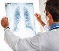 Буллезная эмфизема легких, осложненная спонтанным пневмотораксом Случай из практики