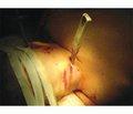 Случай хирургического лечения проникающего осложненного ножевого ранения на уровне позвонков С3-С4