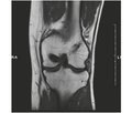 Long-term results of posterior cruciate ligament reconstruction using tibial flexor tendon autograft