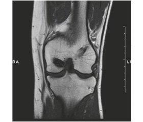 Long-term results of posterior cruciate ligament reconstruction using tibial flexor tendon autograft