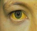 Механическая желтуха: современные взгляды на проблему диагностики и хирургического лечения