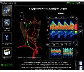 Зміни церебральної гемодинаміки за показниками ультразвукової допплерографії у хворих на гострий ішемічний інсульт у вертебробазилярному басейні