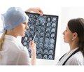 Можливості прогнозування перебігу епілепсії удорослих після першого неспровокованого нападу