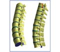 Comparative Data Analysis of the Physical and Mathematical Modeling of Explosive Thoracolumbar Spine Fracture