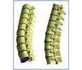Сравнительный анализ показателей при физическом и математическом моделировании взрывного перелома грудопоясничного отдела позвоночника