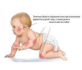 Optimizing the Treatment of Atopic Dermatitis  in Infants Using Ursodeoxycholic Acid