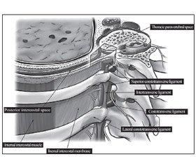 Паравертебральная аналгезия