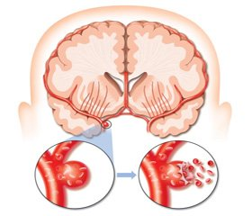 Acute neurotrophic disorders of the digestive system against the background of a cerebral stroke