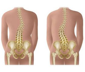 Association between bone turnover markers and leptin in girls with adolescent idiopathic scoliosis
