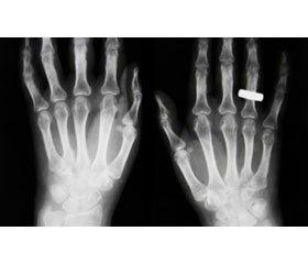 Стан мінеральної щільності кісток упостменопаузальних жінок різного віку,  хворих нацукровий діабет 2-го типу