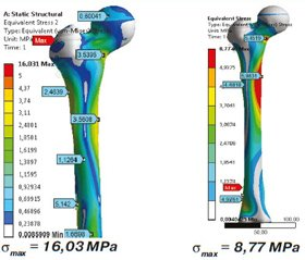 Comparative analysis of the reliability of the fixation of pertrochanteric fractures using normal and elongated proximal femoral nail