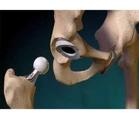 Features of hip replacement in severe types of dysplasia
