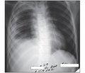 Осложненная пневмококковая пневмония у ребенка: клинический случай