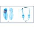 Роль остеосцинтиграфії та рентгенографії у хворих на остеонекроз при ендопротезуванні колінних суглобів