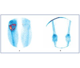 Role of Bone Scintigraphy and X-Ray Imaging in Patients with Avascular Necrosis of the Femoral Head in Hip Arthroplasty