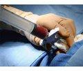 Використання кісткового банку для виконання кісткової пластики при ендопротезуванні суглобів та інших ортопедичних операціях