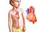 Diagnosis, clinical manifestations, treatment and prognosis for children with coarctation of the aorta