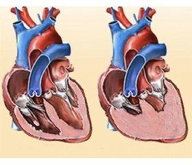 Дослідження впливу гуморальних запальних факторів ухворих нахронічну серцеву недостатність впоєднанні зцирозом печінки невірусного походження