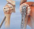 Обґрунтування і можливості малоконтактного багатоплощинного остеосинтезу