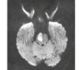Neuroprotection after systemic thrombolysis in patients with ischemic stroke: a case report