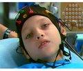 Рефрактерні форми епілепсії у дітей: пошуки раціональної протиепілептичної політерапії