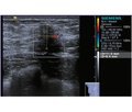 Case of pseudoangiomatous stromal hyperplasia