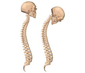 Duality of Genesis of Osteopenic Syndrome in Patients with Central Form of Ankylosing Spondylitis Complicated by Gastroesophageal Reflux