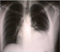Complicated pneumococcal pneumonia in a child: case report.