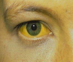 Дифференциальная диагностика желтух