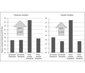 Олмесартан улучшает показатели мозговой гемодинамики и неврологические исходы у пожилых пациентов с артериальной гипертензией и ишемическим инсультом