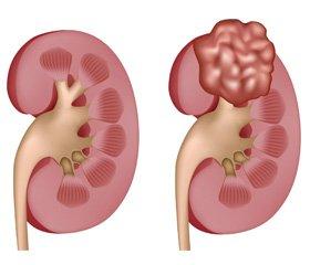Етіопатогенез нирково-клітинного раку